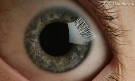 ászanák, amelyek javítják a látást a helyes látás művészete