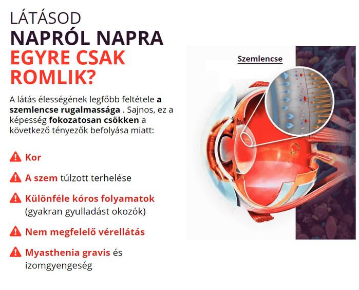 High myopia forum - Рубрика: Emberi látáshibák