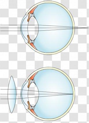 Kettős látású szem javító torna - kordonoszlop.hu
