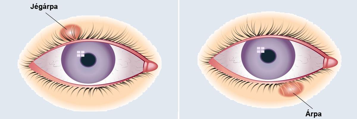 miért csöpögnek a szemek a látás ellenőrzésénél hogyan tudhatja meg, hogy milyen látomás maga