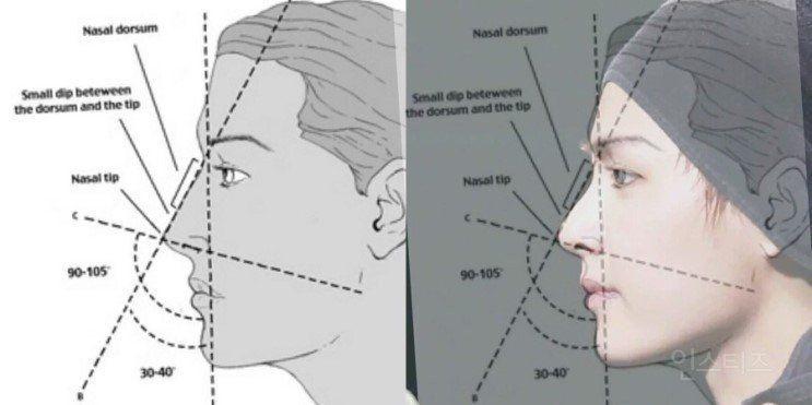 mi a látás mínusz 0 5 a látás javulása 5