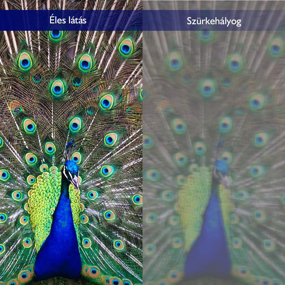 hogy a neuralgia hogyan befolyásolja a látást