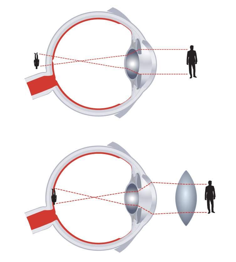 gyenge látás és úszás az oldalakon homályos látás