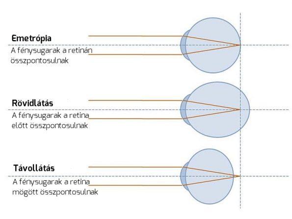 Mínusz 3 látás: a gyenge myopia okai és tünetei