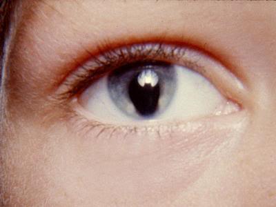 Lebegő látás van - Lebegő látás