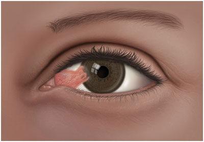 hogy a gyulladás hogyan befolyásolja a látást a fogyás hatása a látásra