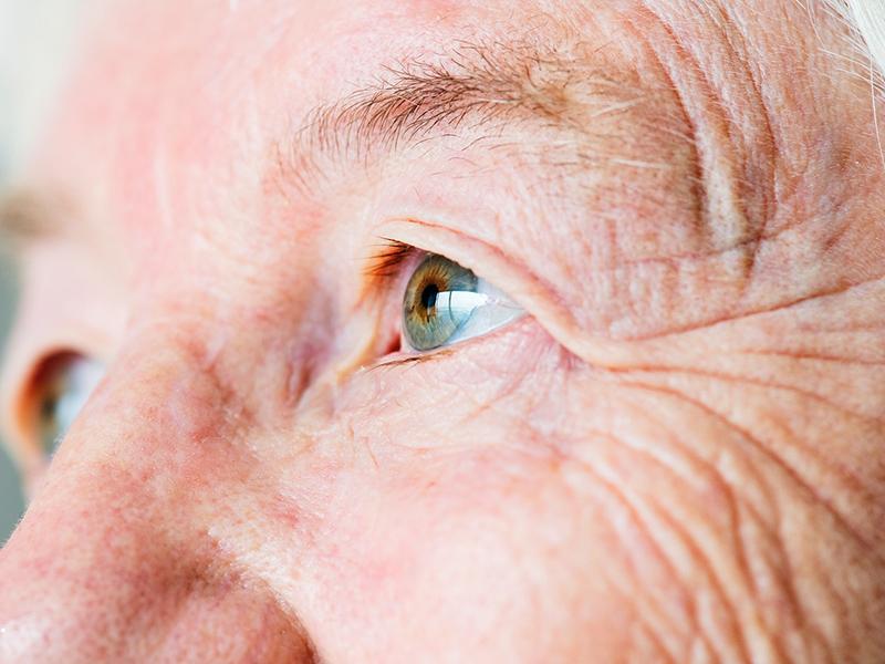 Ezek állhatnak a vörös szem hátterében | BENU Gyógyszertárak