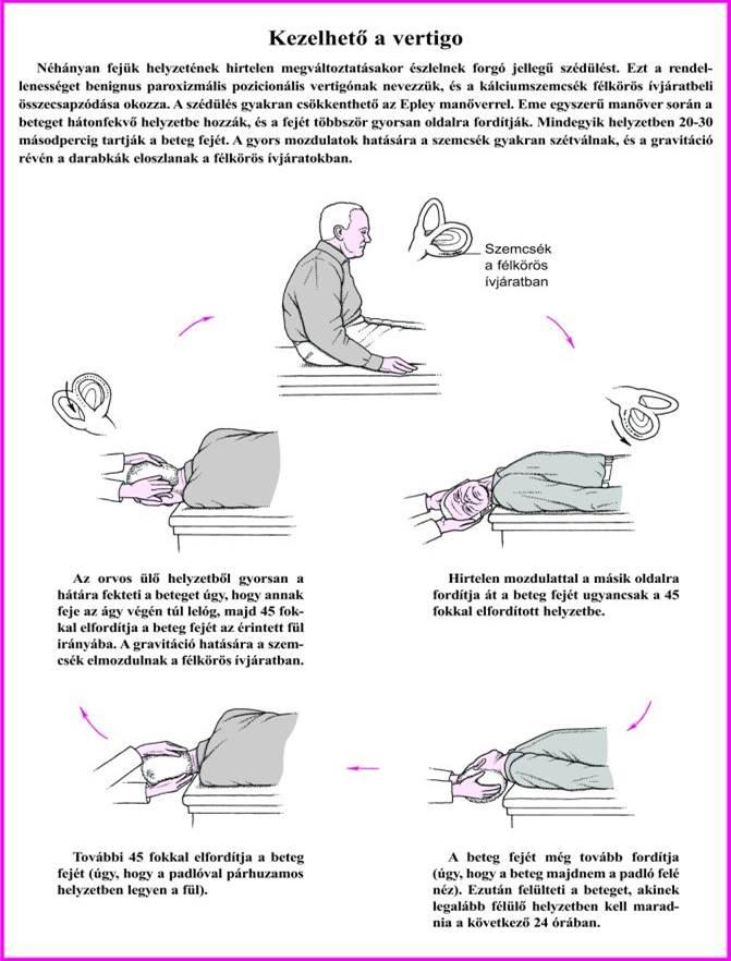 Tudta Ön, hogy a szédülés kiváltó okai gyakran nyaki gerinc eredetűek?