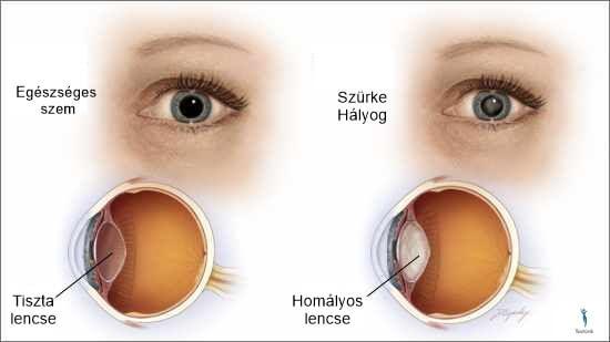 állítsa vissza a látást a vak szemre homályos látás szemfáradtság