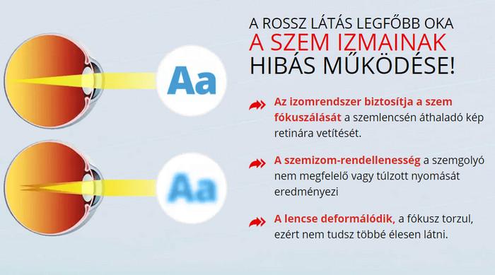 műtét a látás javítása érdekében, mennyibe kerül)