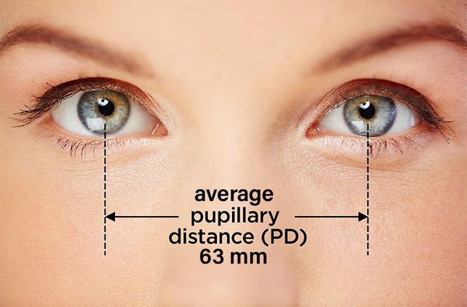A fundus megváltozása magas progresszív myopia esetén. Hogyan kezelik a magas myopia?