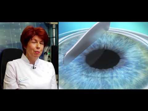 szemműtét video myopia látás rövidlátás, hogyan kell kezelni