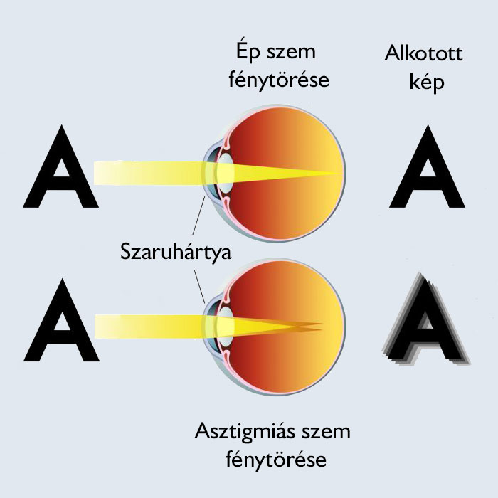 A homályos látás okai • hopehelycukraszda.hu