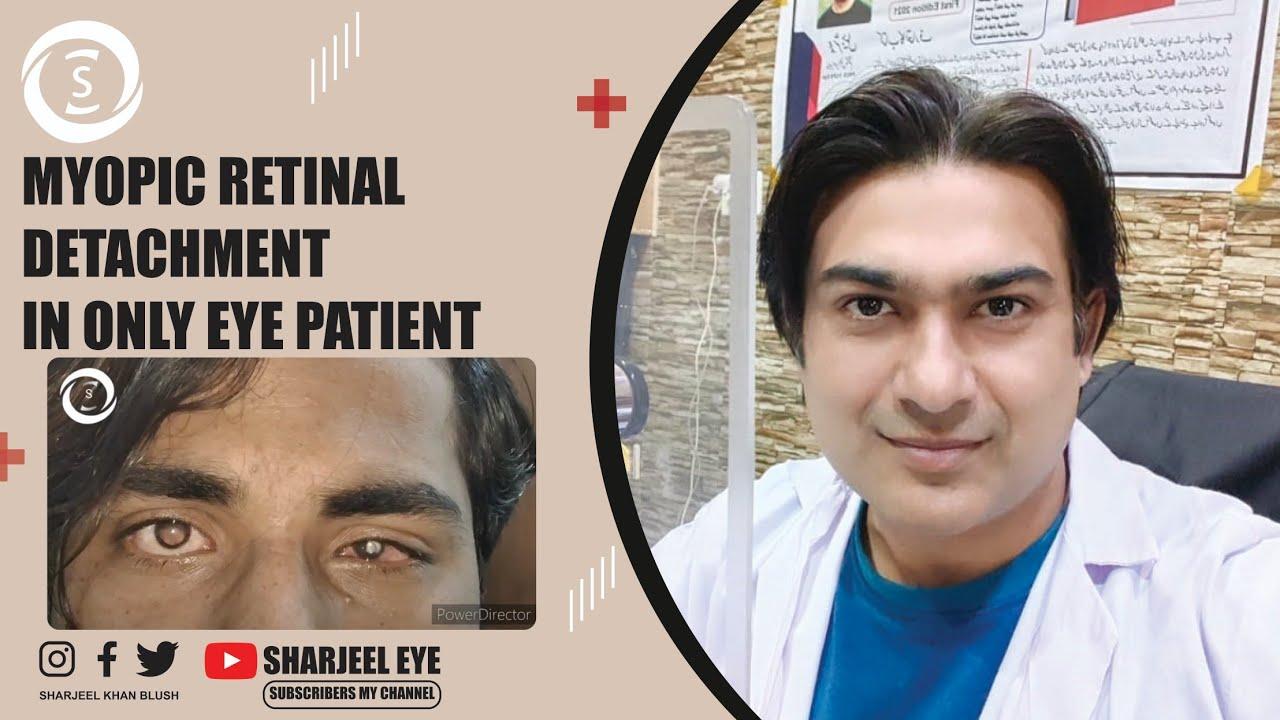Hyperopia torna a szem számára - hopehelycukraszda.hu