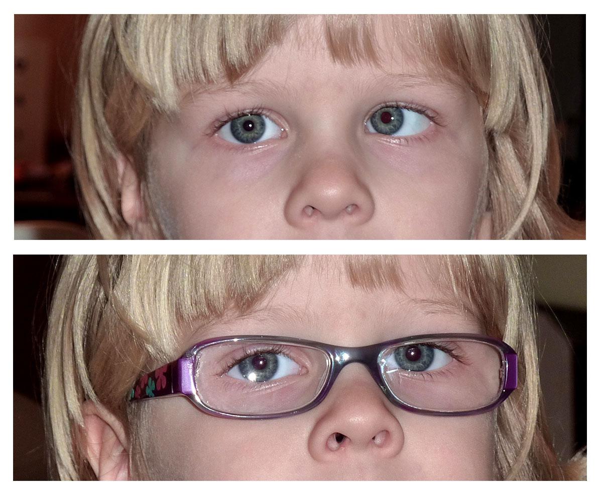 hogyan kell kezelni a látást 3 5-kor