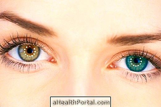 Hogyan lehet csökkenteni a látását