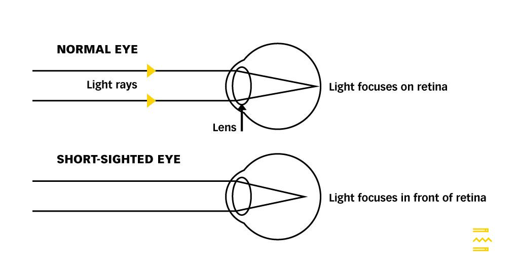 vízió a születési diagramban hogyan lehet javítani a látást mérsékelt rövidlátás