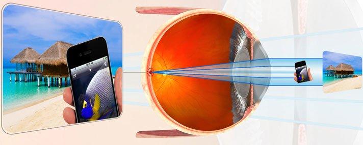 myopia következménye