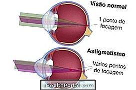 javult a látásélesség