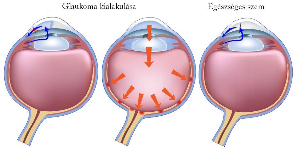 Glaucoma (Zöldhályog)