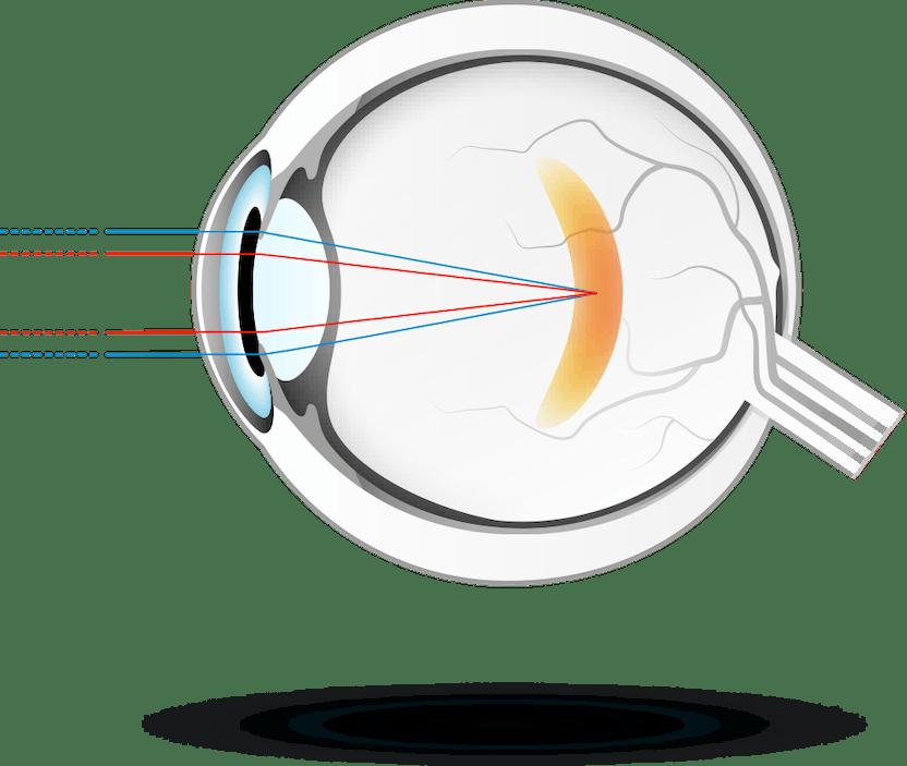 a látás éles romlása