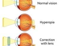 Astigmatizmus myopia esetén. Astigmia, Astigmatizmus