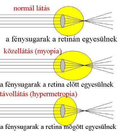 hogyan lehet megtudni, mennyire rossz a látása