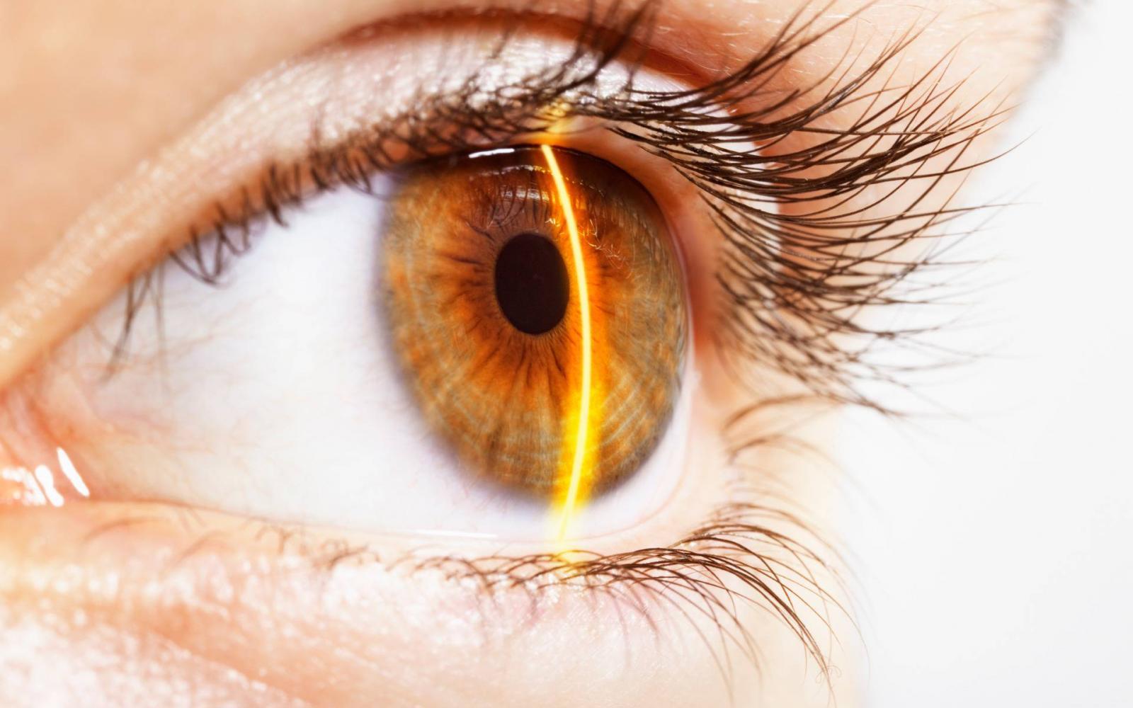 látás zeller coloboma látása