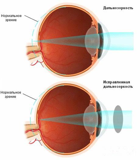 a látás romlik, mit csöpögjön