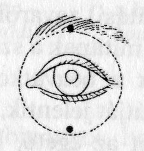 látás rövidlátás első fokú