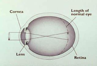 látáslátás és rövidlátás