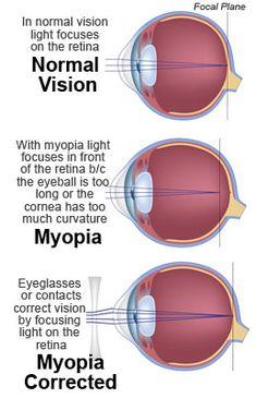 myopia és hyperopia mi ez