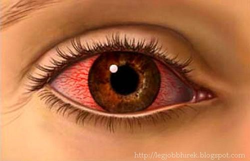 a látás fokozott fényereje hogyan lehet helyreállítani a látás kezelését