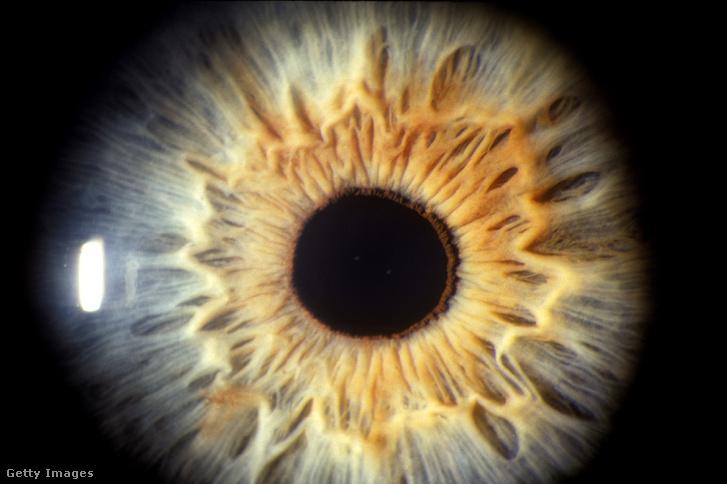 az emberi látás vakfoltjai látás és noliprel