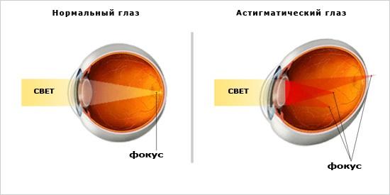 a látás javítása módszerrel