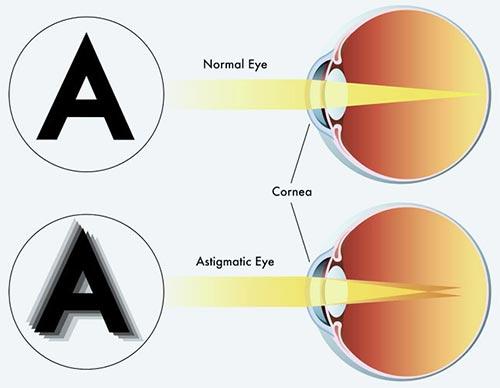a látásélesség csökkent