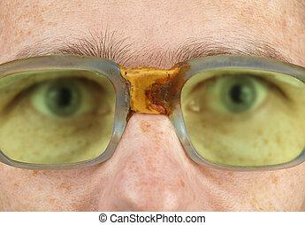 Többet fáj a fejünk, ha rosszul látunk | FEOL