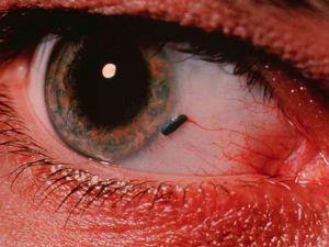 szem sérülés
