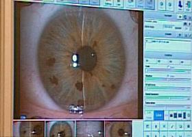 milyen műveletek vannak a látás szempontjából