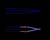 Myopia 7 dioptria