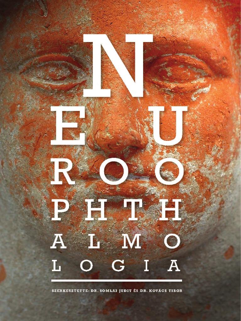 Etiológia és patogenezis a látásban, Usher-szindróma