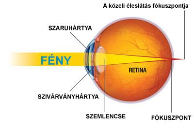 A fekete körök okai egy személy szemében