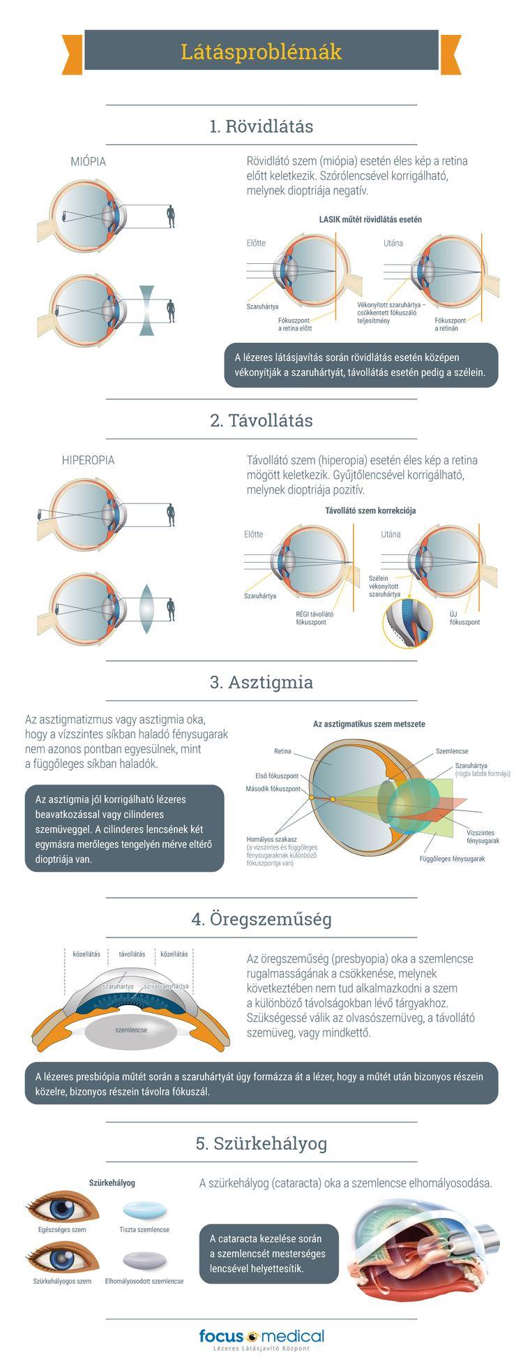 Mik a hyperopia és a myopia tünetei? műtét a látás helyreállítása érdekében