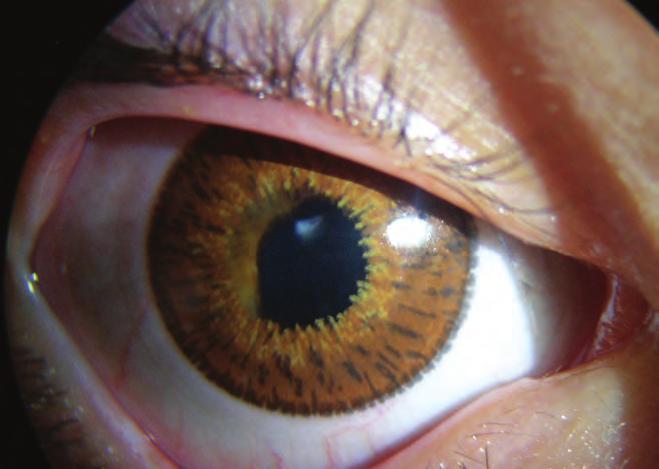 a látás helyreállítása uveitis után röplabda és rövidlátás