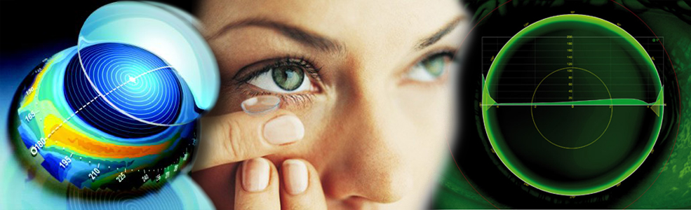 hány dioptra, ha a látás mínusz 4 Helyesbítem a látásomat