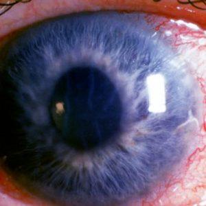 Glaukóma műtét javítja a látást