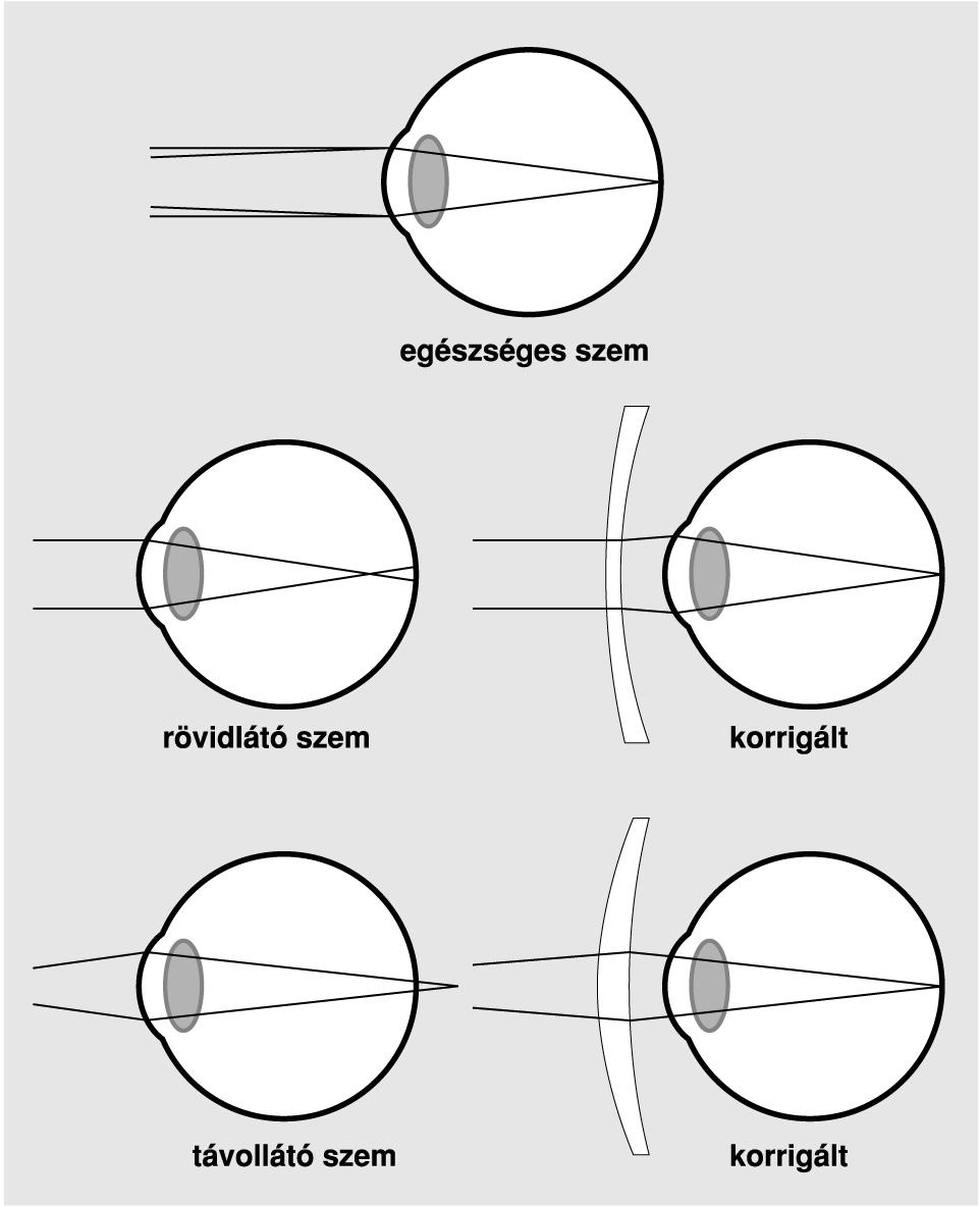 látásvizsgálati táblázat betűméretei
