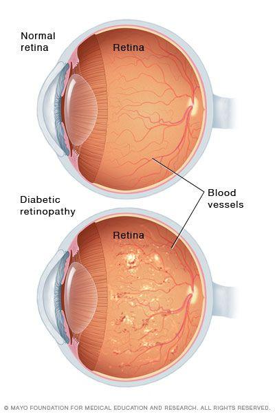 videotorna szem myopia pedagógiai látásvizsgálat
