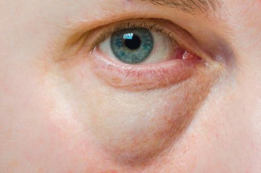 látászsákok a szem alatt