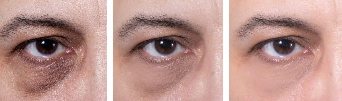 nézz a szemre vigyázz a szemedre
